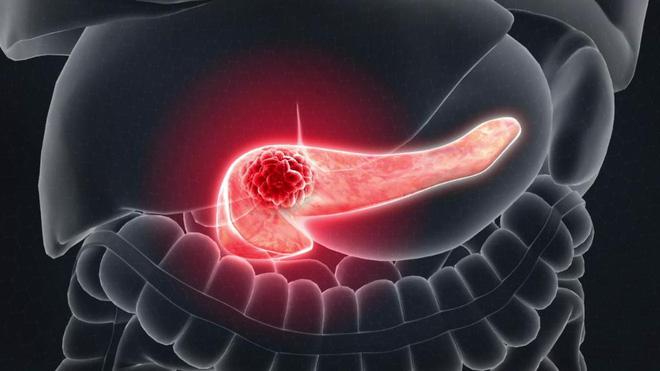 Bị đau tức vùng bụng dưới bên trái: nguyên nhân có thể là do 4 căn bệnh rình rập trong cơ thể-2