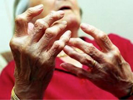 Ngũ gia bì trị phong thấp, chấn thương đụng giập