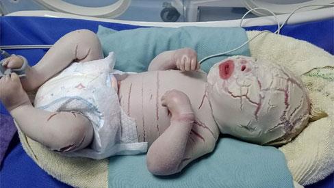 Hiếm gặp: Mắc bệnh lý rối loạn da di truyền, một trẻ sơ sinh có da toàn thân bị khô cứng