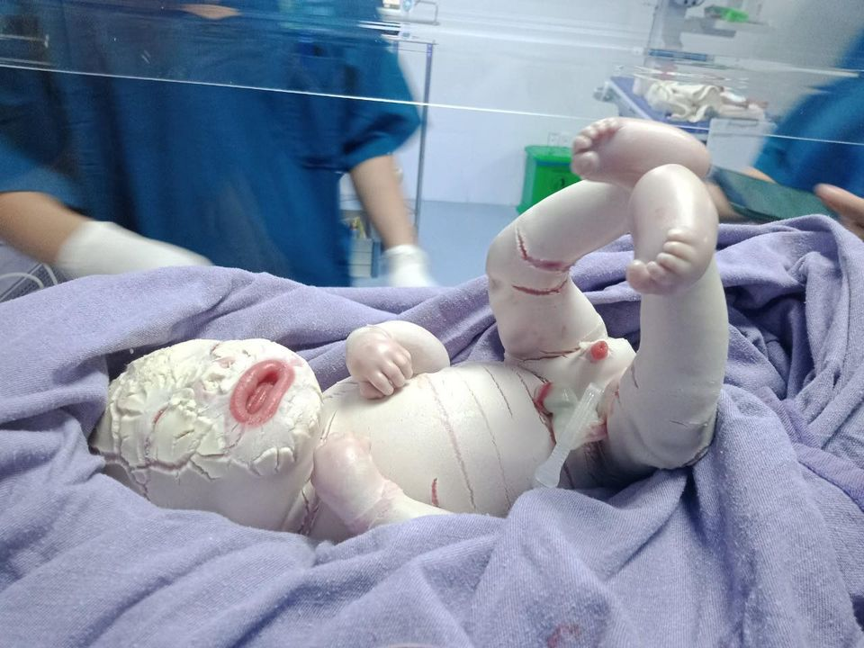 Hiếm gặp: Mắc bệnh lý rối loạn da di truyền, một trẻ sơ sinh có da toàn thân bị khô cứng-3