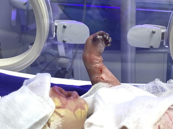 Sức khỏe của bé sơ sinh có da vảy cá ở Quảng Ninh tiên lượng xấu, được chuyển lên BV Nhi Trung ương-1