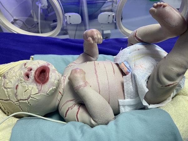 Sức khỏe của bé sơ sinh có da vảy cá ở Quảng Ninh tiên lượng xấu, được chuyển lên BV Nhi Trung ương-2