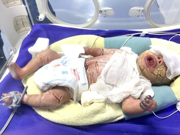 Sức khỏe của bé sơ sinh có da vảy cá ở Quảng Ninh tiên lượng xấu, được chuyển lên BV Nhi Trung ương-3