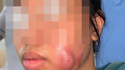 Tạo má lúm đồng tiền làm duyên, thiếu nữ 16 tuổi bị sưng vù mặt