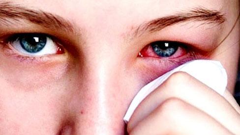 Phòng ngừa đau mắt mùa bão lũ