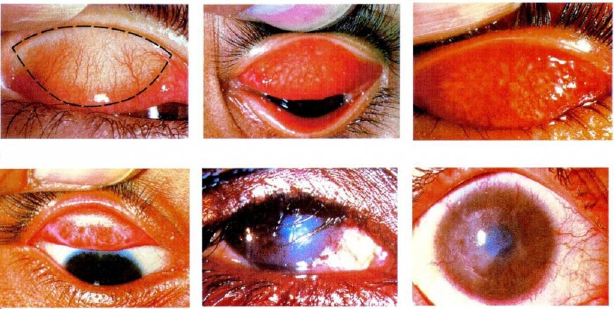 Phòng ngừa đau mắt mùa bão lũ-1
