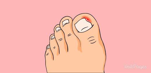 Bị đau ngón chân suốt 6 năm trời, người phụ nữ 39 tuổi đi khám mới phát hiện móng đã ăn sâu vào thịt-2