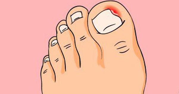 Bị đau ngón chân suốt 6 năm trời, người phụ nữ 39 tuổi đi khám mới phát hiện móng đã ăn sâu vào thịt
