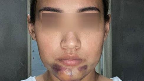 Tiêm collagen xong, cô gái bị bầm tím sưng phồng phần cằm gấp 5 lần khiến MXH
