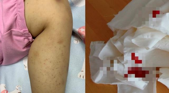 Bé gái 8 tuổi chảy máu mũi, xuất hiện ban đỏ và vết bầm tím, bác sĩ cảnh báo trường hợp nghiêm trọng có thể tử vong-1
