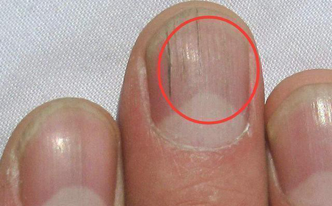 Quan sát đôi tay, nếu thấy có 3 tín hiệu xấu thì nên chú ý sức khỏe vì nguy cơ mắc bệnh về gan rất cao-2
