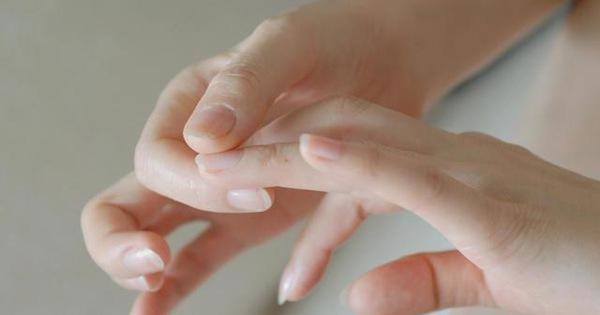 Quan sát đôi tay, nếu thấy có 3 tín hiệu xấu thì nên chú ý sức khỏe vì nguy cơ mắc bệnh về gan rất cao-3
