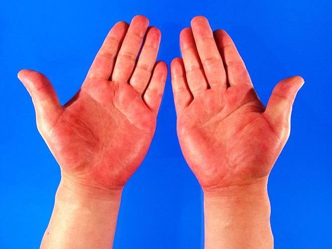 Quan sát đôi tay, nếu thấy có 3 tín hiệu xấu thì nên chú ý sức khỏe vì nguy cơ mắc bệnh về gan rất cao-4