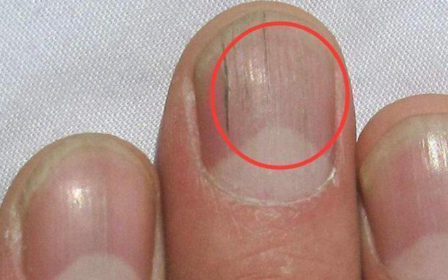 Quan sát đôi tay, nếu thấy có 3 tín hiệu xấu thì nên chú ý sức khỏe vì nguy cơ mắc bệnh về gan rất cao