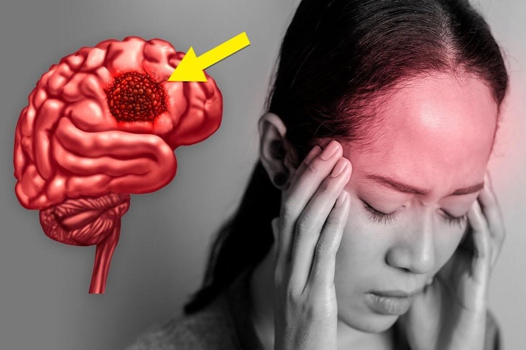 7 dấu hiệu cảnh báo khối u trên não