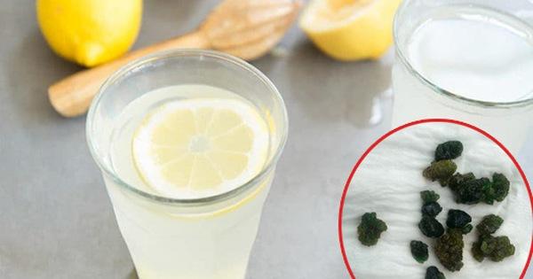 Xổ ra cả đống sỏi gan, sỏi mật nhờ uống dầu ôliu, dầu dừa: Sự thật kinh hoàng phía sau mới là điều bạn cần biết về trào lưu detox đang