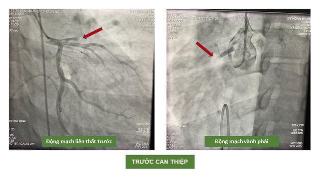 40 phút nghẹt thở cứu sống nam bệnh nhân bị nhồi máu cơ tim cấp -2
