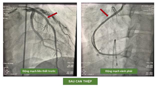40 phút nghẹt thở cứu sống nam bệnh nhân bị nhồi máu cơ tim cấp -3