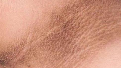 Cảnh giác, 4 dấu hiệu này ở cổ cho thấy tế bào ung thư đã xuất hiện trong cơ thể
