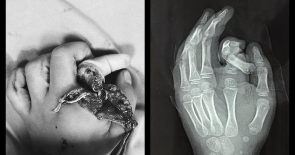Bỏ tay vào máy giặt đang chạy, bé trai 6 tuổi ở Hà Nội bị đứt rời ngón tay