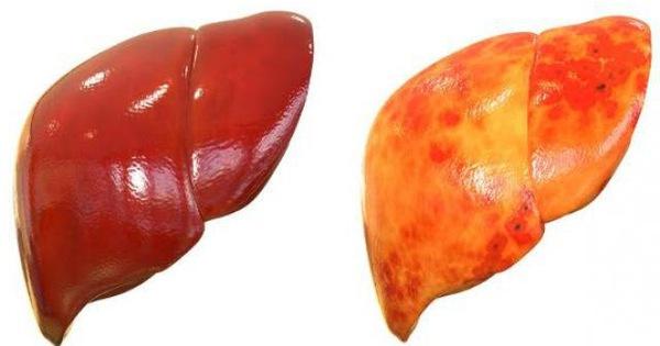 Gan nhiễm mỡ không chỉ do ăn nhiều chất béo: Đây là 4