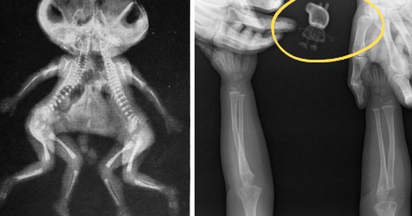 """Những hình chụp X quang kỳ lạ nhưng thú vị sau đây sẽ cho bạn cơ hội nhìn mọi vật từ """" tận sâu bên trong"""""""