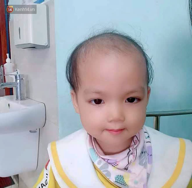 Bé gái 4 tuổi bị ung thư phải cắt bỏ 1 bên thận và câu nói nhói lòng trước ca xạ trị: Bố mẹ đừng khóc, con không đau đâu-6