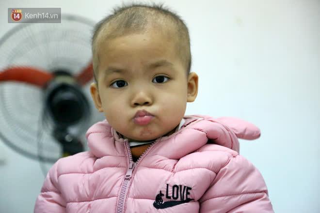 Bé gái 4 tuổi bị ung thư phải cắt bỏ 1 bên thận và câu nói nhói lòng trước ca xạ trị: Bố mẹ đừng khóc, con không đau đâu-11