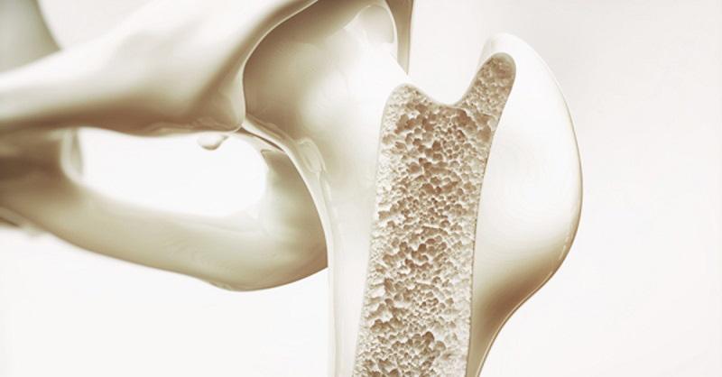 BS tiết lộ công thức tự đánh giá nguy cơ loãng xương: 3 nhóm người nên kiểm tra ngay-1