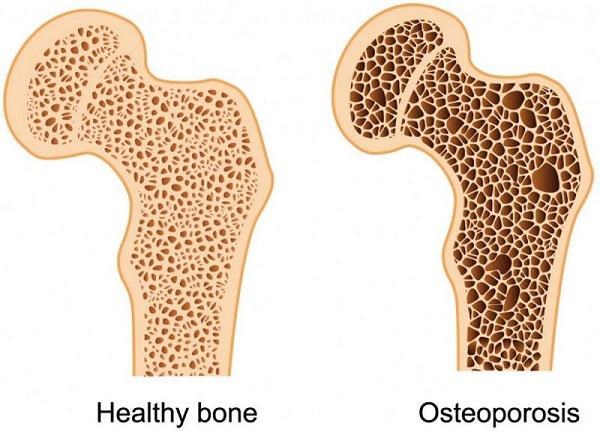 BS tiết lộ công thức tự đánh giá nguy cơ loãng xương: 3 nhóm người nên kiểm tra ngay-2