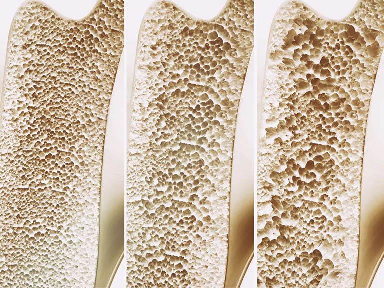 BS tiết lộ công thức tự đánh giá nguy cơ loãng xương: 3 nhóm người nên kiểm tra ngay-3