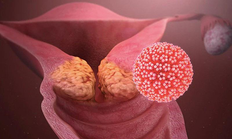 1 vạn người/ngày bị ung thư gọi tên ở Trung Quốc: 6 thói quen  hàng ngày áp dụng ngay-1