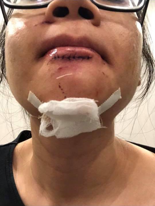 Nữ gymer Hà Nội bóc phốt phòng tập sau chấn thương nghiêm trọng khi tập luyện cùng HLV cá nhân-3