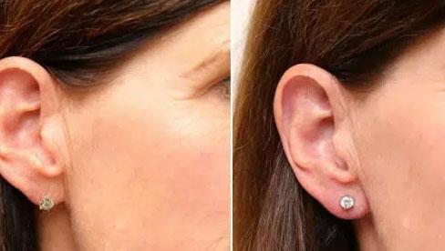 Sốt xình xịch dịch vụ tiêm tai tài lộc đón Tết, chuyên gia khuyên mọi người nên nắm kỹ 3 điều trước khi tiến hành!