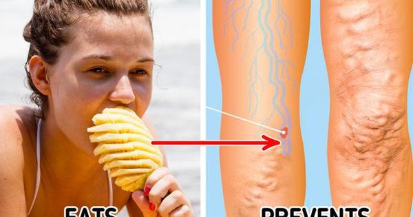 7 thực phẩm cứ đi chợ là thấy có tác dụng từ làm sạch da, đến loại bỏ hóa chất trong gan, giảm cholesterol... Càng gần Tết chị em càng nên ăn