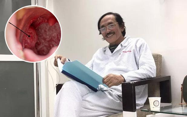 Tìm hiểu về ung thư hạ họng: căn bệnh nghệ sĩ Giang Còi đang mắc xuất phát từ những thói quen mà ai cũng có khả năng phạm phải