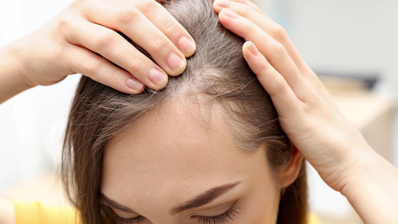 Vitamin ngăn ngừa rụng tóc