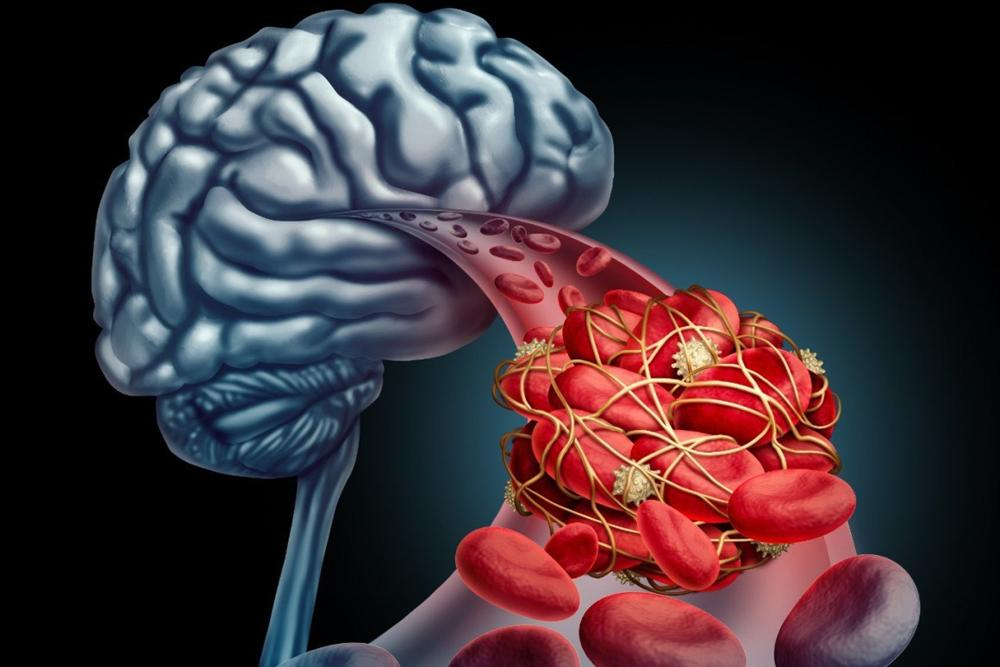 Một phụ nữ 52 tuổi chết vì nhồi máu não, bác sĩ nói thủ phạm là do thói quen ăn uống-3