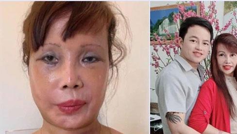 Vừa khoe gương mặt đã khỏi bị lệch, cô dâu Cao Bằng 64 tuổi lại hé lộ hình ảnh cho thấy mối quan hệ của chồng