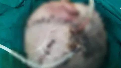 Bị chó nhà cắn tổn thương nặng vùng đầu, bé trai hơn 4 tuổi nhập viện trong trạng thái li bì