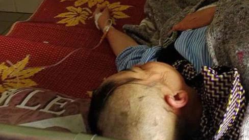 Người phụ nữ bị cạo đầu, đánh đập dã man, nhập viện trong tình trạng đau đớn hoảng loạn, nghi do ghen tuông