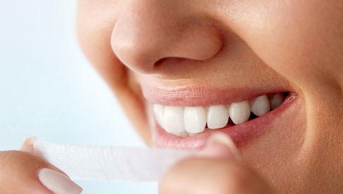 Cách sử dụng miếng dán trắng răng và những điều cần lưu ý