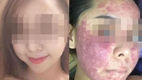 Người phụ nữ nhiễm độc nặng khi sử dụng mỹ phẩm chứa thủy ngân