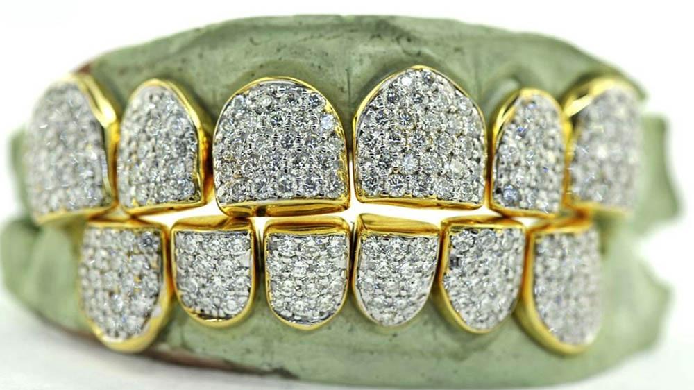 Những mẫu răng vàng độc đáo của Johnny Dang