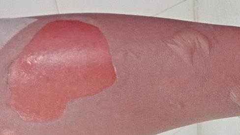 Người trầy da, lở loét, rỉ nước hôi tanh chỉ vì thói quen nhiều người làm hàng ngày