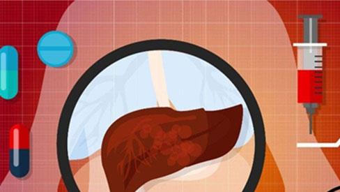 4 kiểu người dễ trở thành mục tiêu của ung thư gan, liệu có bạn trong đó?