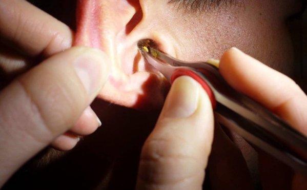 """Trưởng khoa Tai mũi họng tại TP.HCM: Không bao giờ được lấy ráy tai""""-3"""