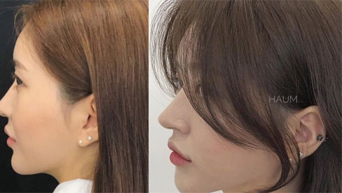 5 kiểu tóc mái siêu nhẹ mát cho mùa Hè, cam đoan là cắt xong nhan sắc sẽ xinh tươi và sang chảnh hơn bội phần