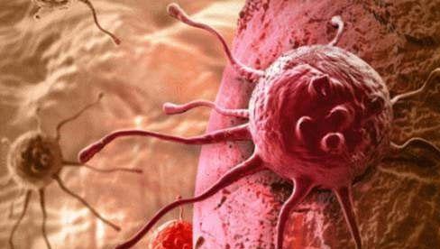 Nhiều người sợ ung thư, nhưng không biết rằng ung thư cũng