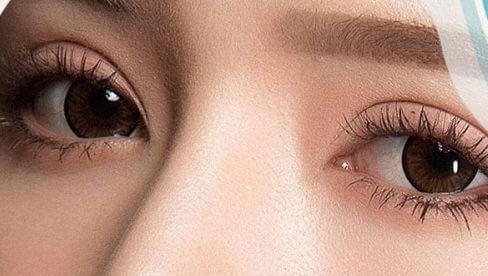 Tác hại của cắt mí mắt: Hội mê làm đẹp nhất định phải biết